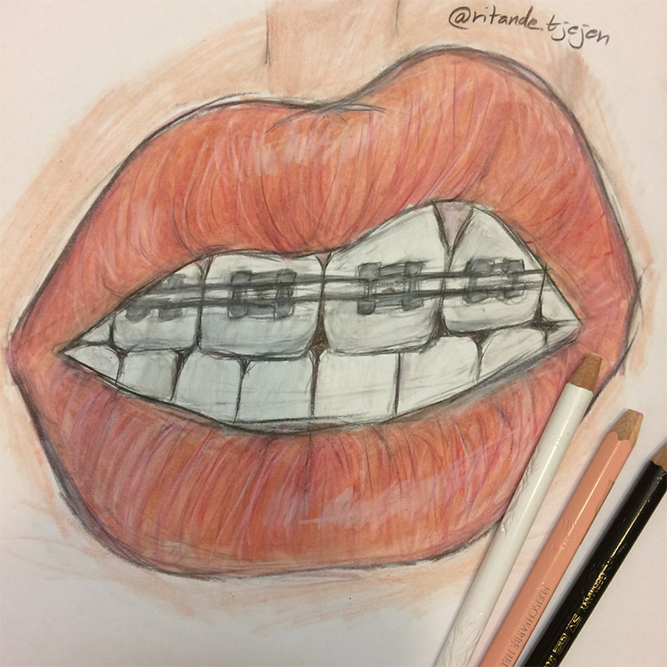 Drawing mouth with braces